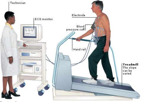 exercise stress test at Newcastle Heart, cardiologists Newcastle